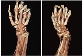 手のCT画像